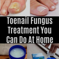 Herbal Treatment For Nail Fungus