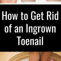 How To Treat Ingrown Toenail Reddit